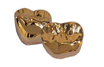 PFM & Full Metal Crowns & Bridges